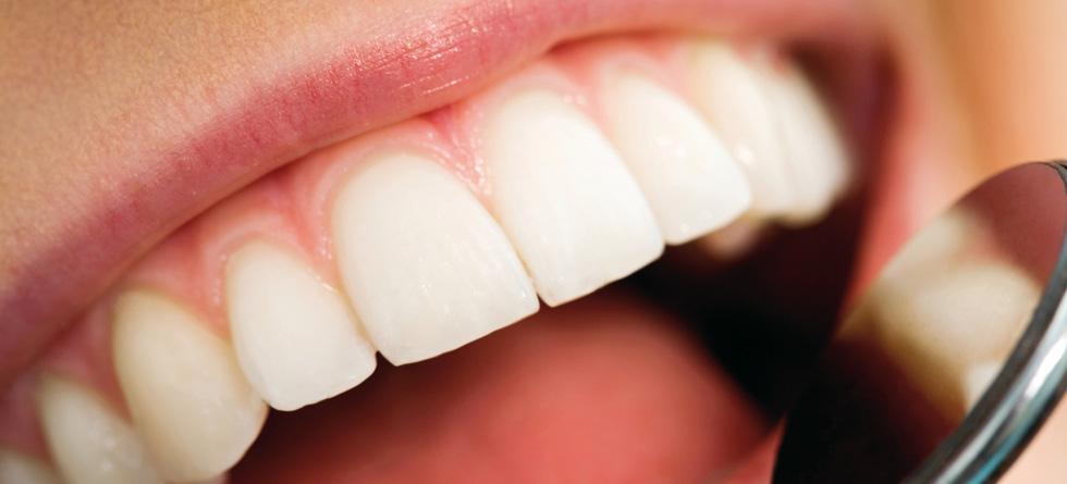 Prevención clínica dental logroño
