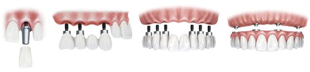 implantes dentales logroño