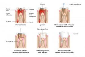 Riojadental_endodoncia