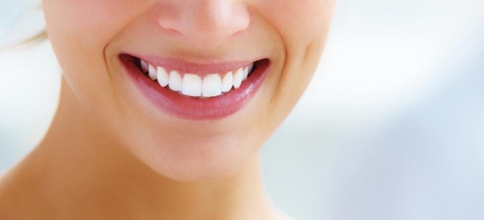 carillas de composite clínica dental logroño