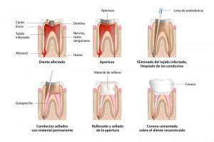 Riojadental_endodoncia