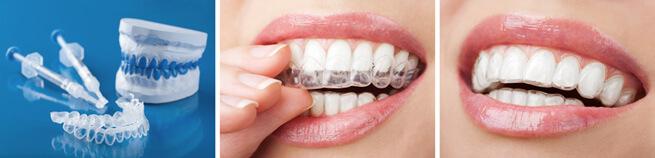 blanqueamiento  dental en logroño