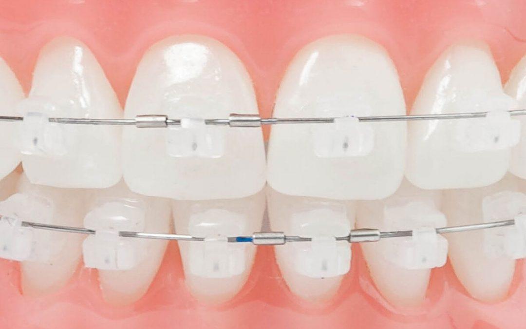 ¿Cuáles son los brackets invisibles de nuestra clínica dental de Logroño?