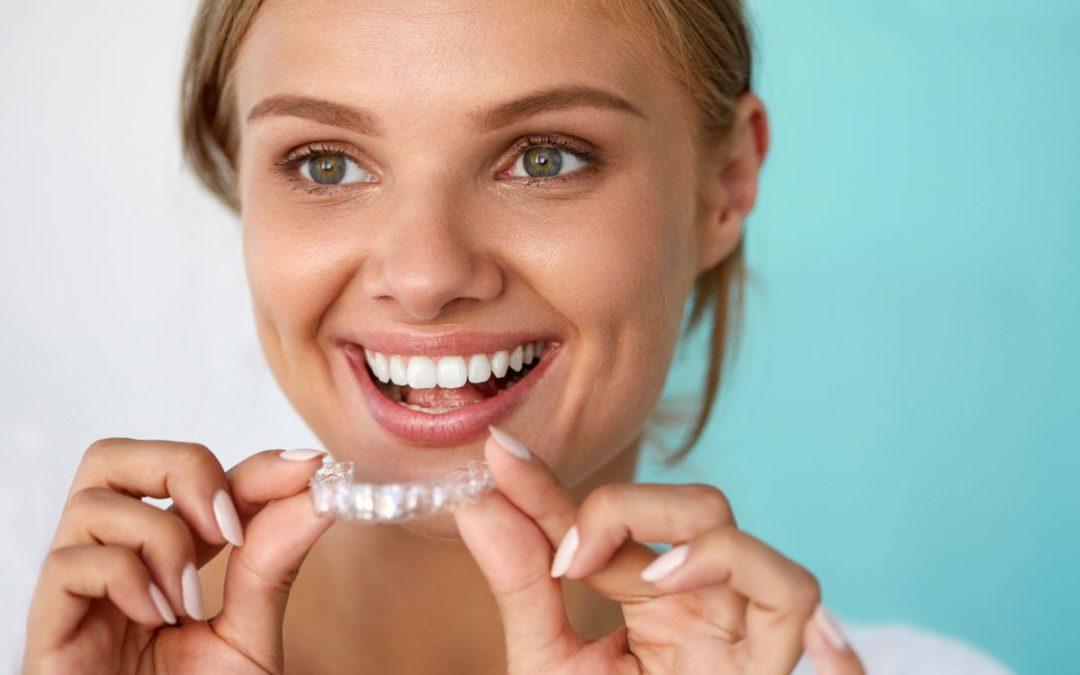 4 curiosidades sobre la ortodoncia invisible