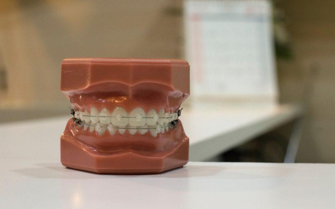 ¿Se puede llevar ortodoncia con implantes?