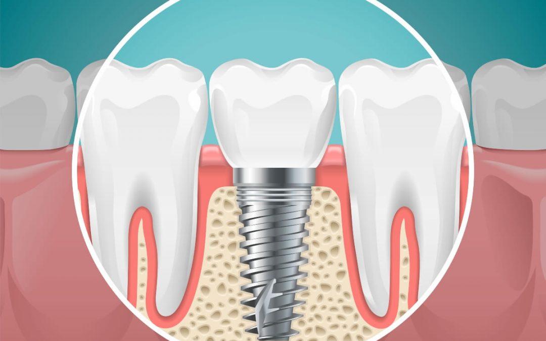 Cuidados postoperatorios de los implantes dentales