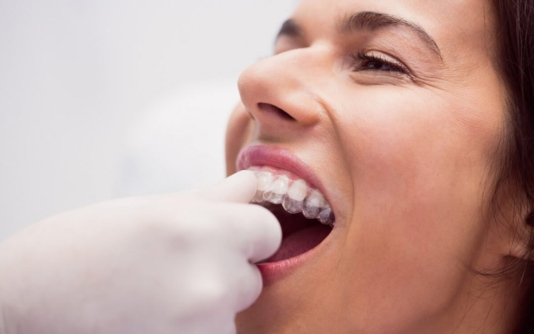 Mitos y realidades sobre la ortodoncia invisible